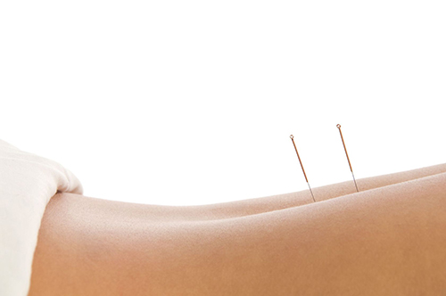 acupuncture-back-with-needles